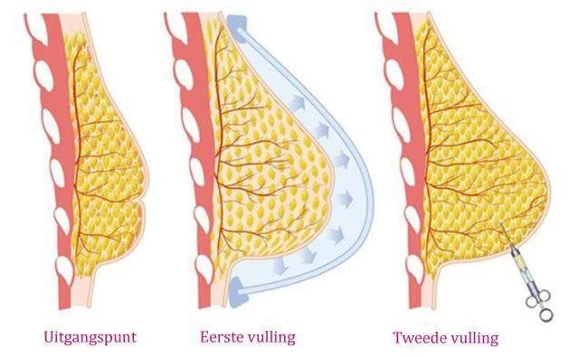 borstvergroting met eigen vet lipofilling