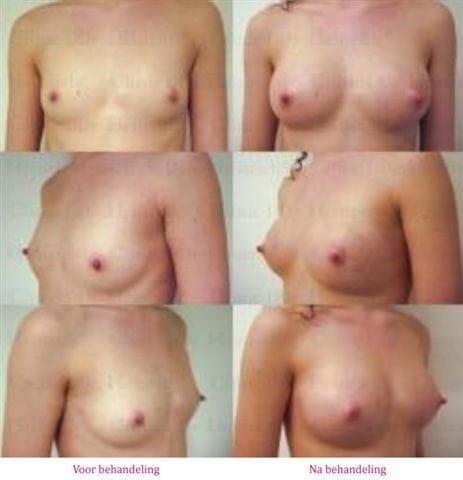 borstvergroting met lipofilling voor na 1
