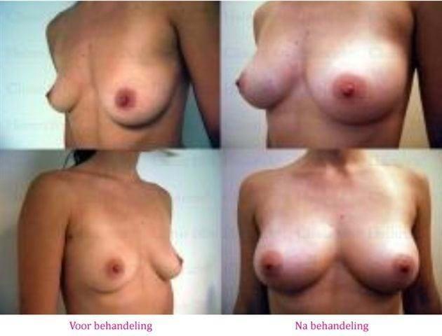 borstvergroting met lipofilling voor na 2