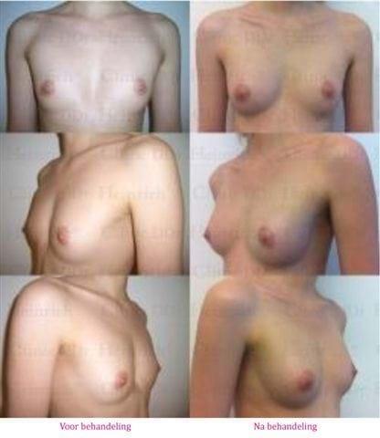 borstvergroting met lipofilling voor na 3