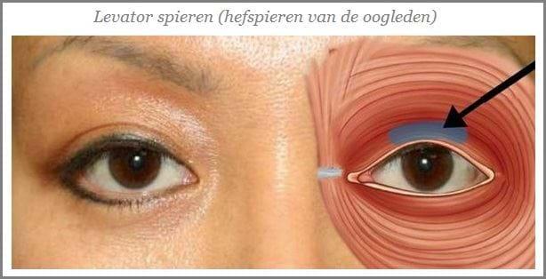 klachten hangende oogleden