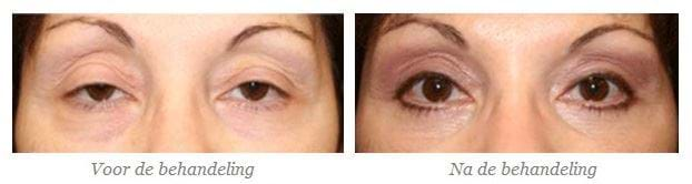 hoofdpijn door hangende oogleden