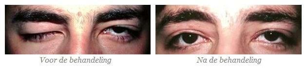 creme tegen hangende oogleden