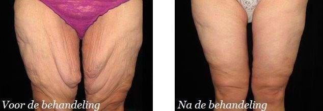 behandeling cellulitis bovenbenen