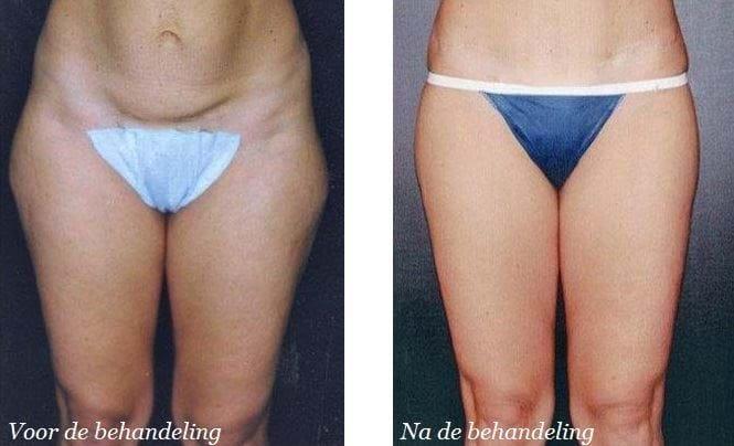lipoedeem liposuctie