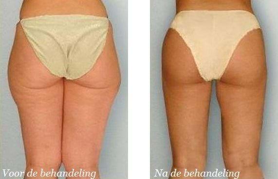 liposuctie benen