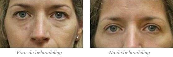 ooglidcorrectie nabehandeling