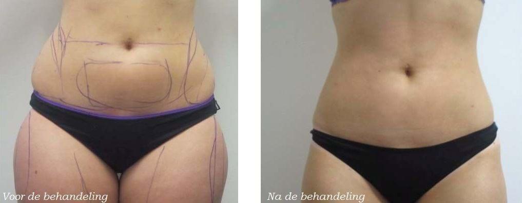 liposuctie amsterdam